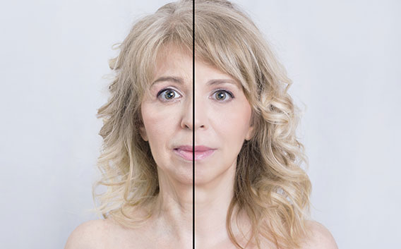 Botox Before and After - Wright Dental Care